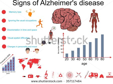 stock-vector-alzheimer-s-disease-infographic-vector-illustration-357117464